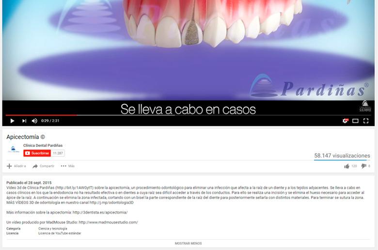 Aprovecha el espacio de la descripción de los vídeos de Youtube para optimizarlo, y conseguir más visitas